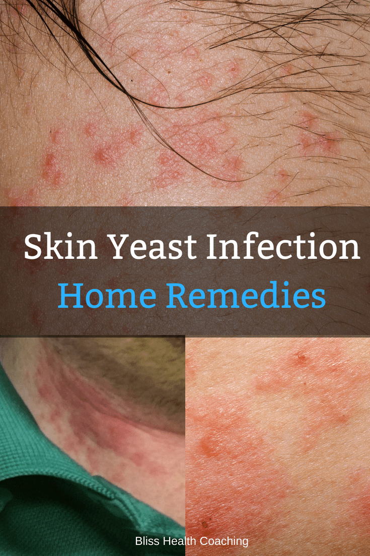 Do you have a candida rash? Learn home remedies for a skin yeast infection and how to get rid of that nasty rash for good. #rash #candida #yeastinfection